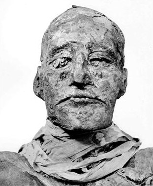 The mummy of Rames­ses III, from a photo in the 1912 book Gen­eral Cata­logue of Egypti­an Ant­i­qui­ties in the Cai­ro Mu­seum pub­lished by the French In­sti­tute of Ori­ental Arch­aeo­logy (Source: World Science).