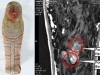 NEWS: The mummified FOETUS: Scans reveal tiny ancient Egyptian sarcophagus contains the remains of a 16-week-oldembryo